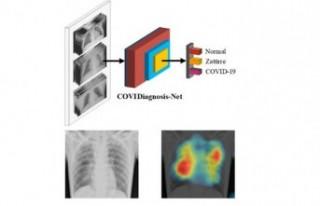 Koronavirüs Testi İçin 'Yapay Zeka' Sistemi